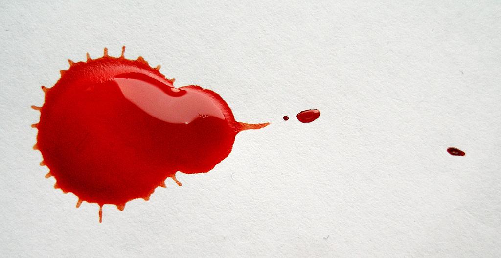 Come togliere le macchie di sangue: trucchi infallibili!